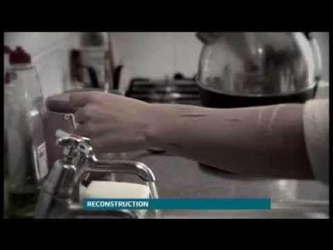 Fixers Self Harm story on ITV News Central, June 2013