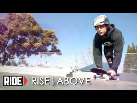 Skateboarder Buddy Elias Loses Leg Due To Smoking & Buerger's Desease - Rise Above (Pt 1)