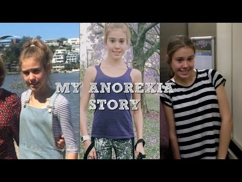 My Anorexia story