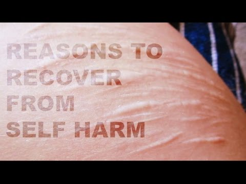 52 Reasons to Recover From Self Harm (Trigger Warning)
