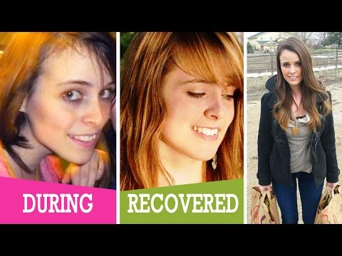 My Eating Disorder Story | Anorexia Recovery