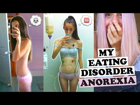 MY EATING DISORDER STORY | Anorexia In Pictures